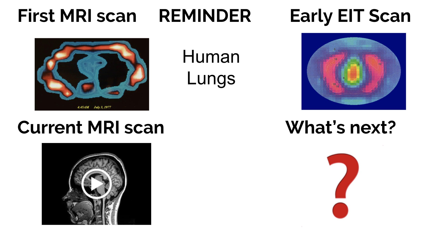 Spectra: Open Biomedical Imaging   Hackaday io