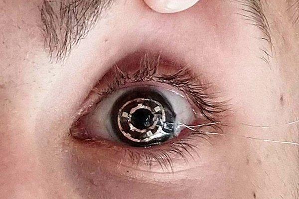 Cyborg Eyeball Project